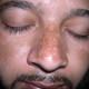 melasma on nose