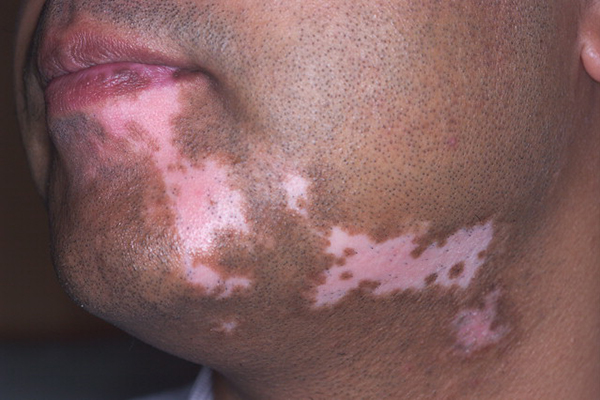 Before-Vitiligo