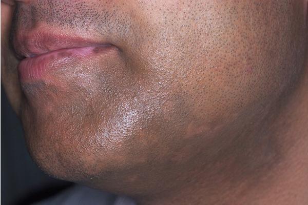 After-Vitiligo
